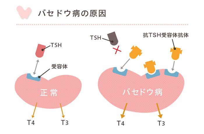 バセドウ病の原因図